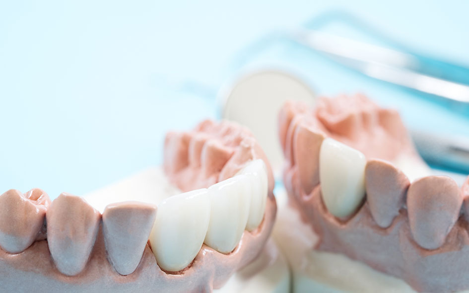 Porcelain Dental Crowns in Houston