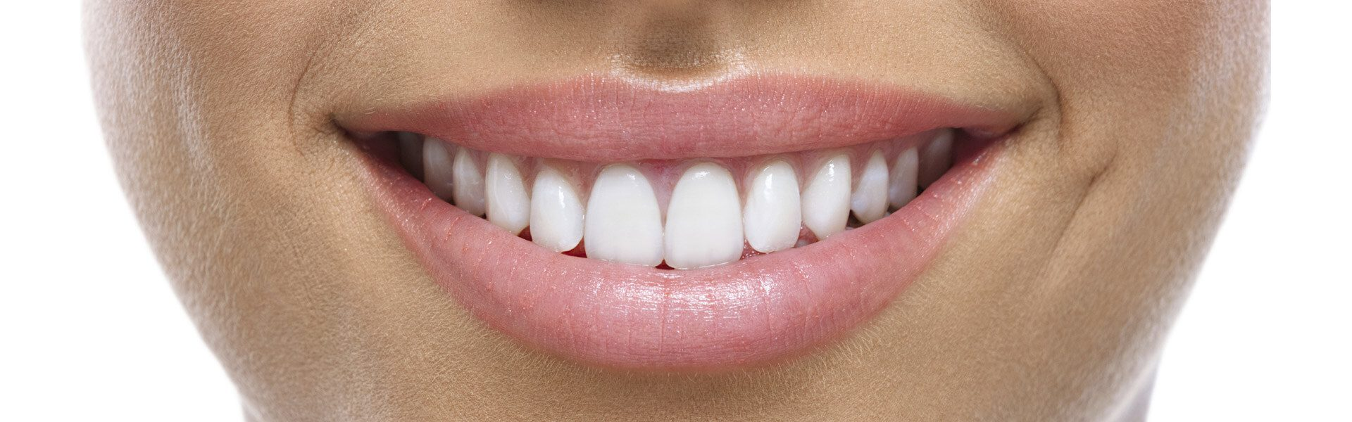 Why You Should Ditch Over-The-Counter Teeth Whitening Products